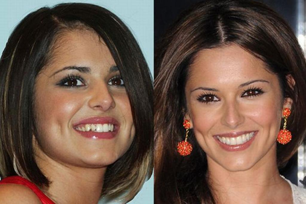 a-cantora-cheryl-cole-antes-e-depois-da-lente-de-contato-dental